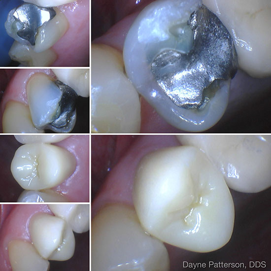 Dental Before/After - Amalgam Filling Replaced with White Filling