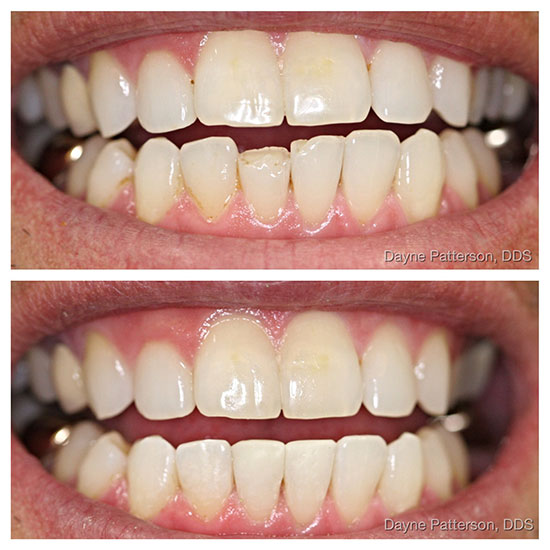 Dental Before/After