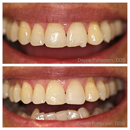 Dental Before/After - Bonding